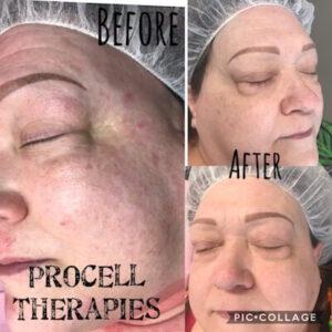 Belle La Vie Procell Treatment